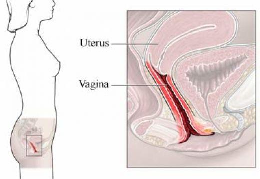 Бактериальный вагиноз.