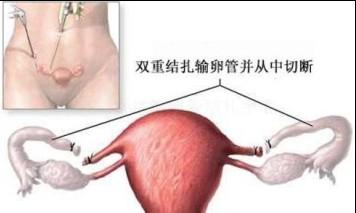 Стерилизация женщины видео 13